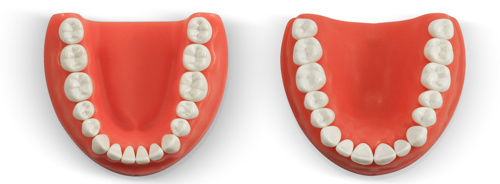 ModuPRO One Upper and Lower Gums with M300 teeth
